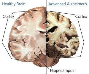 alzheimer-cerebro-imagen