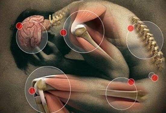 fybromialgie