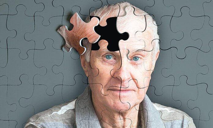 5 signes qui précèdent Alzheimer
