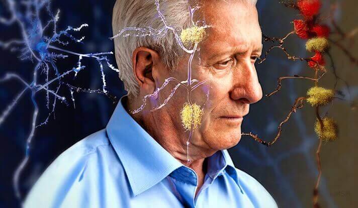 homme et synapses