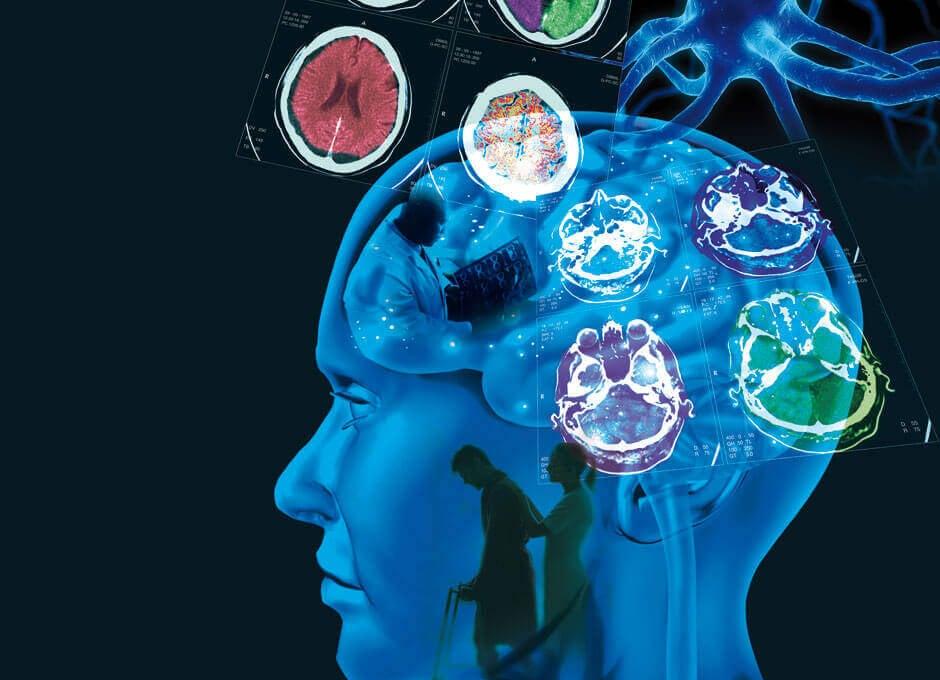 cerveau d'une personne avec sclérose en plaques