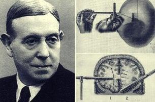 histoire de la lobotomie