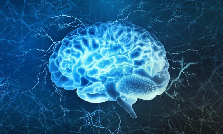 imagerie du cerveau