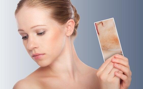 dermatite atopique chez une femme