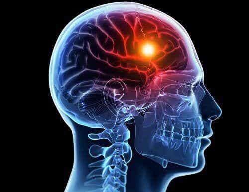 Accidents vasculaires cérébraux : causes et types