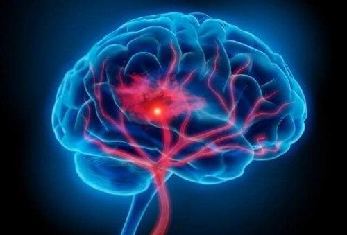 cerveau touché par la neuroinflammation