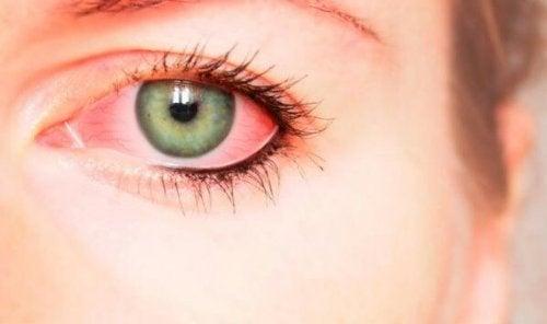 la violence psychologique peut provoquer des épanchements oculaires