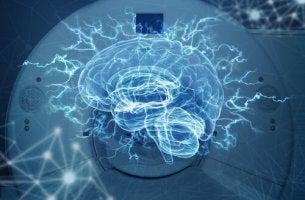 rayons cerveau