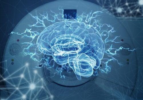 Différences entre le scanner et l'IRM