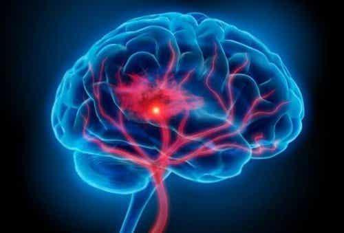 Le syndrome sérotoninergique : symptômes et traitement