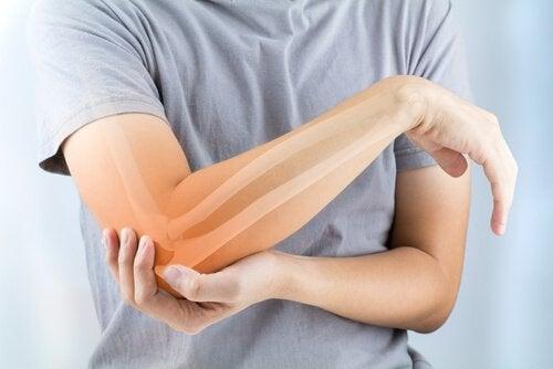 Arthrite rhumatoïde : symptômes, causes et traitement