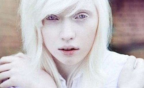 Les personnes Albinos : au-delà de l'aspect physique