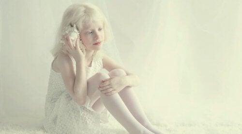 personnes albinos