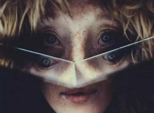 malformations faciales