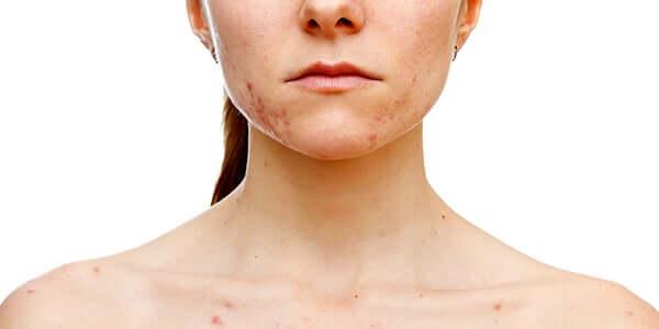 Les ovaires polykystiques provoquent de l'acné