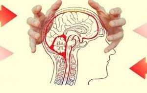 effets de la préoccupation sur le cerveau