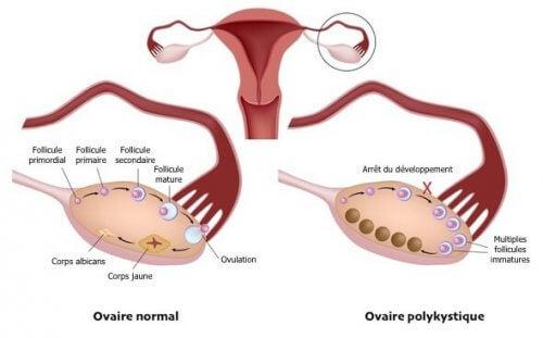 Vivre avec le syndrome des ovaires polykystiques : à quoi cela ressemble-t-il ?