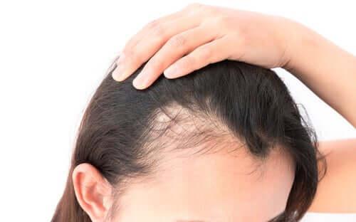 Une femme présentant une alopécie