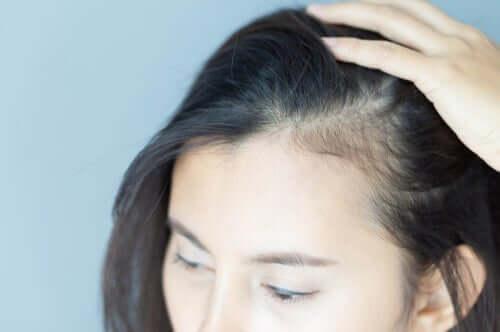 Conséquences psychologiques de l'alopécie chez les femmes