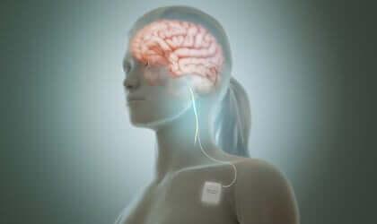 La stimulation du nerf vague réduit les symptômes de la dépression