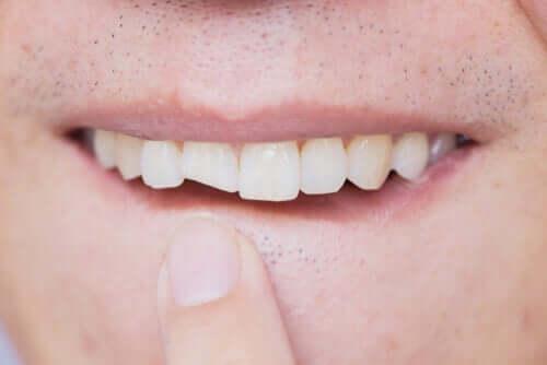 Une dent cassée