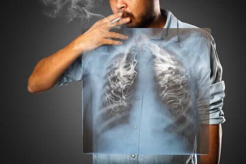 Les poumons d'un homme qui fume