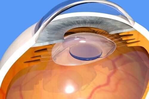 En quoi consiste l'opération de la cataracte ?