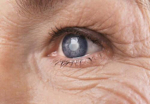 Comment le cerveau intègre-t-il les changements visuels à la suite d'une opération de la cataracte ?