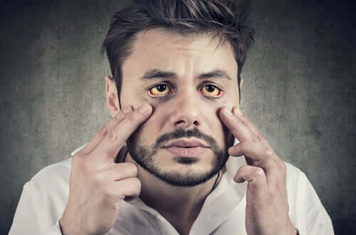 Les symptômes du syndrome de Gilbert