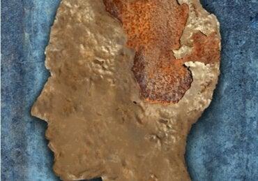 Encéphalopathie spongiforme ou maladie de la vache folle
