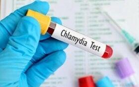 La chlamydia, une maladie sexuellement transmissible très courante