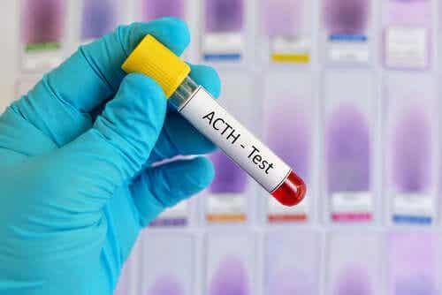 Hormone adrénocorticotrope : caractéristiques et fonctions