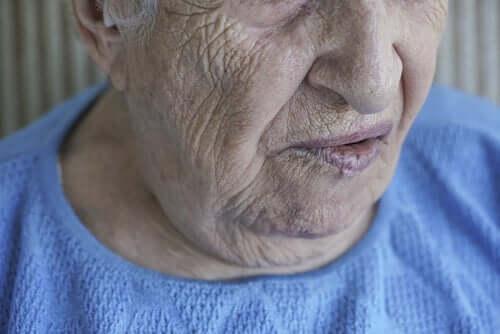 Paralysie faciale : lorsque le visage ne répond pas