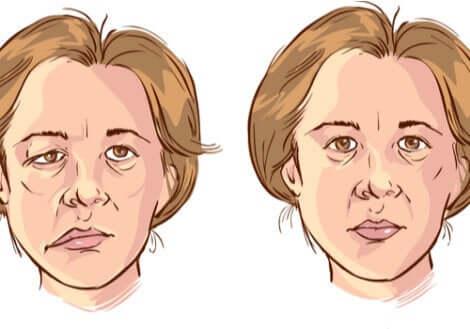 La paralysie faciale d'une femme.