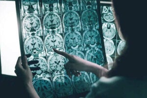 Les ondes gamma contre la maladie d'Alzheimer