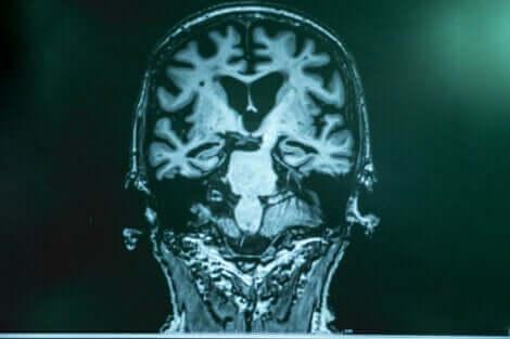 Maladie d'Alzheimer : augmenter les ondes gamma dans le cerveau.