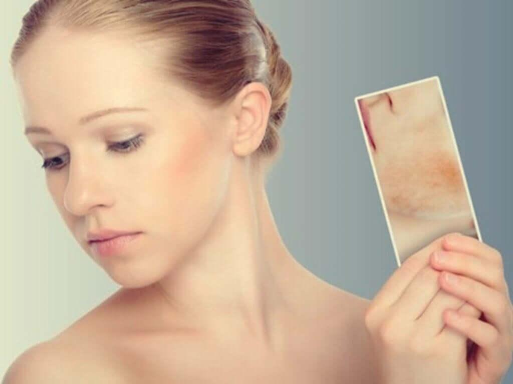 Taches de stress : quand la peau réagit aux émotions