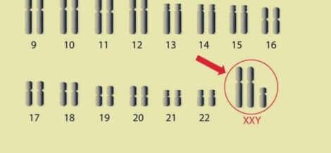 Le syndrome des chromosomes Klinefelter.