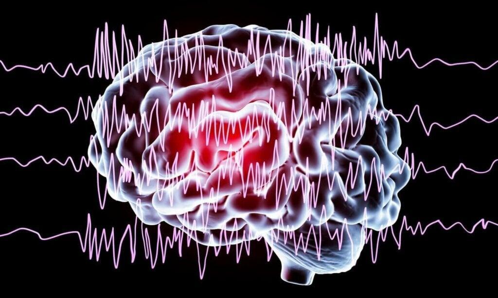 Une illustration d'un cerveau en crise.