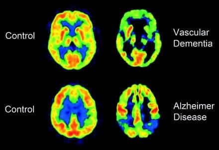 Scanner du cerveau.
